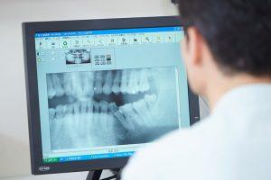 矯正歯科について